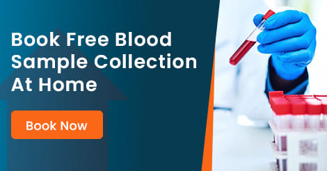 Free Sample Collection At Home